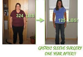Gastric Sleeve Surgery Mexico - Service weight Loss