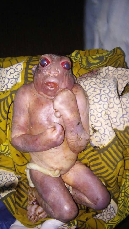 Selon les informations, lundi dernier, un évènement mystérieux s'est produit à Dapaong. Une jeune fille de la localité aurait accouché d'un être bébé avec l'apparence d'une grenouille.