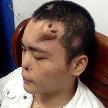 Un chinois se fait pousser un nouveau nez sur le front
