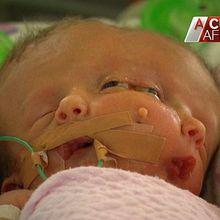 Une australienne donne naissance à un bébé à deux visages