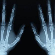 Stop aux tests d'âge osseux (Collectif)