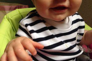 Visite du 8ème mois de bébé chez le médecin