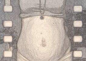 Avant d'avoir un bébé, j'avais très peur de la grossesse