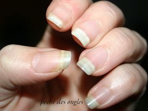 mes ongles!!