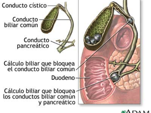 Colelitiasis y Coledocolitiasis