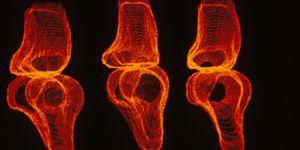 Régénérer une articulation grâce à un implant de nouvelle génération