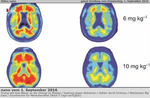 Recherches: résultats positifs avec la Thérapie d'anti-corps contre la maladie d'Alzheimer - Plaque amyloïde