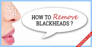 Winning Tactics For Blackheads