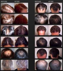iGrow Hair Growth Helmet Clinically Guaranteed to Work!