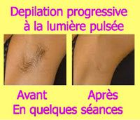 Epilation definitive à la lumiere pulsee