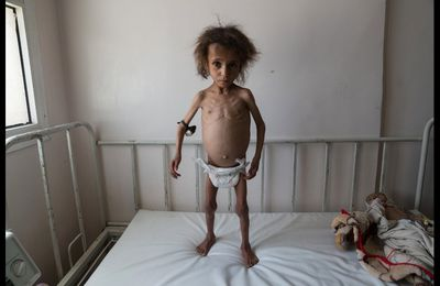 Alors que le Yémen se meurt… Le monde « civilisé » regarde ailleurs (L'Expression.dz)