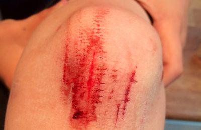 Ouch #10: Boum le genou