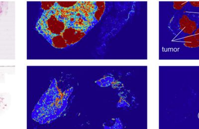 Google Deep Learning system diagnoses cancer better than a pathologist with unlimited time