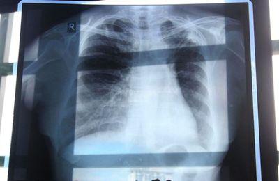Tuberculose, une maladie en voie d'éradication !