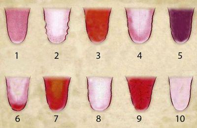 10 choses que la couleur de votre langue révèle votre santé