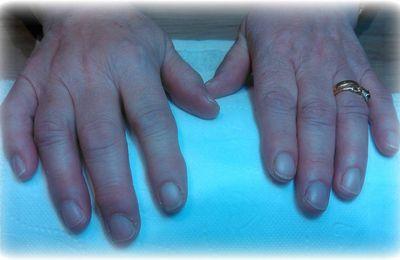 embellissement d'ongles naturels avant/apres