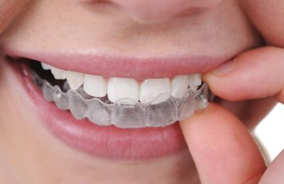 Got Invisalign? 2 Natural Options for Cleaning your Plastic
