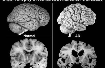 La maladie d'Alzheimer, cette inconnue
