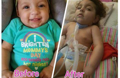 Ariella, née en parfaite santé et maintenant victime de vaccins