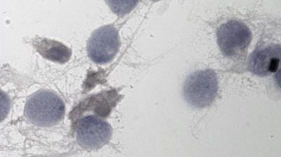 Plaintes contre une banque du sperme