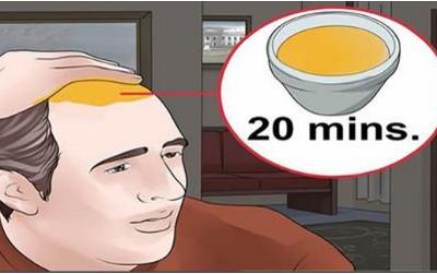 Vous pouvez faire votre pousser les cheveux de Retour Naturellement, suivez ces étapes simples.