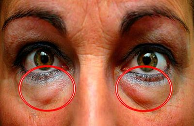 Apprenez les meilleurs traitements naturels pour supprimer les cernes et les poches sous les yeux. Remèdes Super Express!