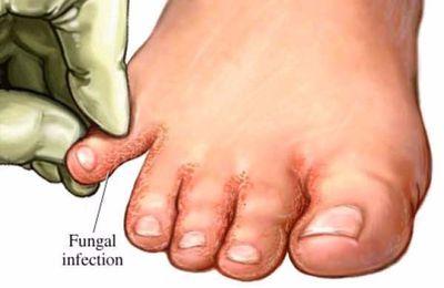 Faites tremper vos pieds dans ceux-ci et dites adieu à toutes les mycoses!