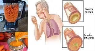 Voici le sirop naturel fait maison qui élimine le mucus des poumons et guérit la toux !