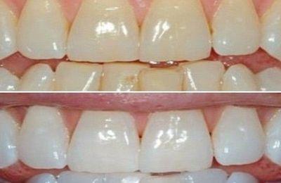 citron et bicarbonate pour blanchir les dents