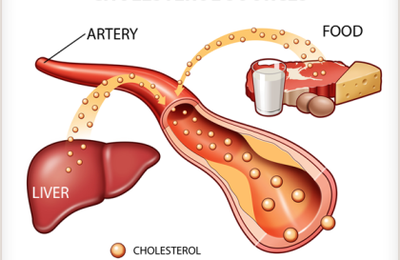 How to Lower LDL Cholesterol – 3 Easy Tips