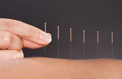 Acupuncture - Round 2