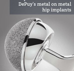 Hip Implant Issues Talked About by Specialists