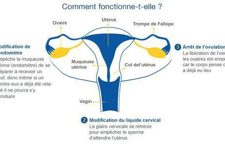 (1) Méthodes contraceptives: traitements médicaux - GLOBEPHARMA