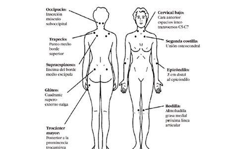 Diagnóstico de la Fibromialgia y localización de los puntos gatillo