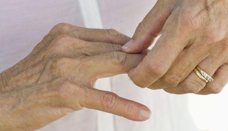 Fibromialgia y artritis ¿están relacionadas?