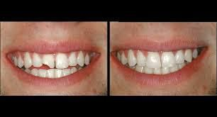 How to fix your broken or chipped teeth do it yourself ukworld solutioingenieria Image collections