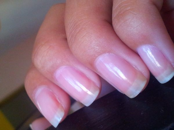 Ongles timides