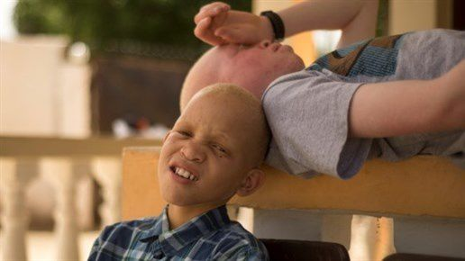 Movie Review: The Boy From Geita, a Movie About Albinism in Tanzania