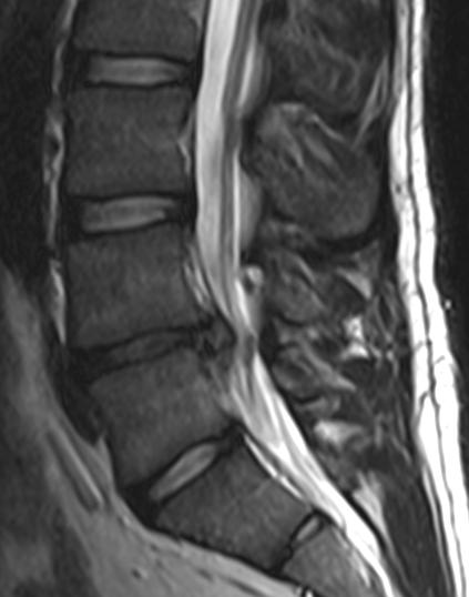 Médicine: Oui à la corticothérapie orale dans les sciatiques par hernie discale ?