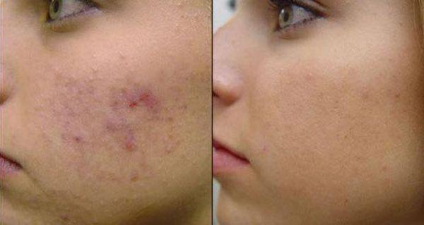 Comment se débarasser naturellement des cicatrices d'acné