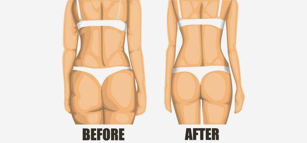 7 conseils efficaces pour se débarrasser de la cellulite rapidement