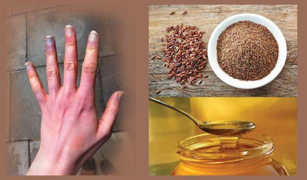 Pourquoi vos mains sont toujours froid glacial? Il est une maladie grave? Causes et traitement du syndrome Raynaud`s!
