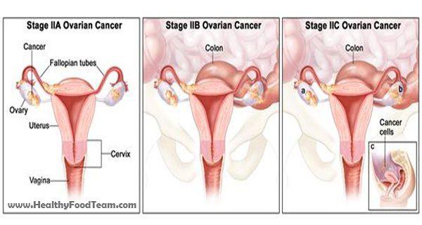 10 signes d'alerte précoce du cancer des ovaires Vous ne devriez pas ignorer