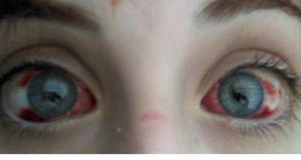 Un petit enfant a perdu 75% de sa vue en raison du petit Toy vous en avez probablement dans votre maison