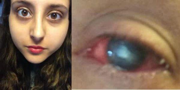 Pour ceux qui portent des lentilles de contact:faites attention !!!!
