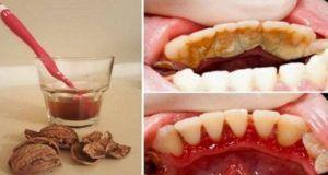 Se débarrasser de la  Plaque des dents, Tartare et Saignement des gencives dans une manière très simple et facile sans douleur