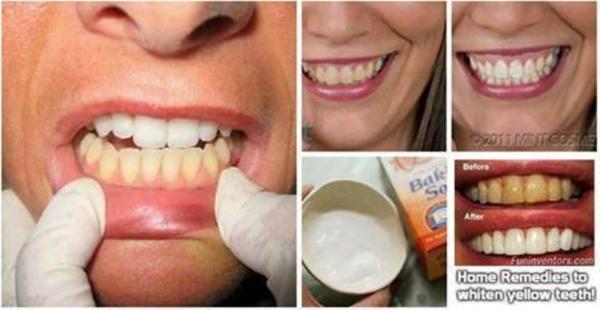 3 plus puissants remèdes maison pour les dents jaunes qui fonctionne merveille dans quelques jours!