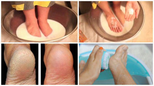Don`t dépenser votre argent sur Pédicure: Utilisez Deux ingrédients de votre cuisine et vos pieds look sympa
