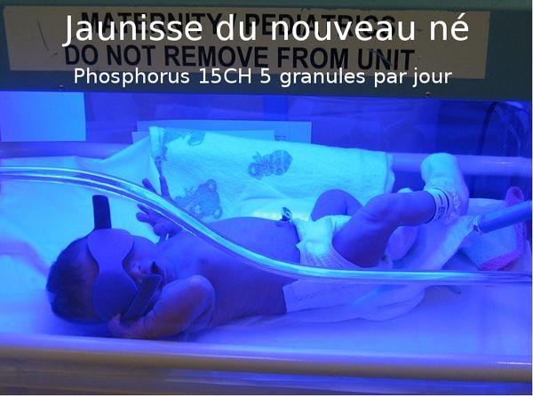 La jaunisse du nouveau né