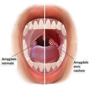 Comment se débarrasser du caséum sur les amygdales?